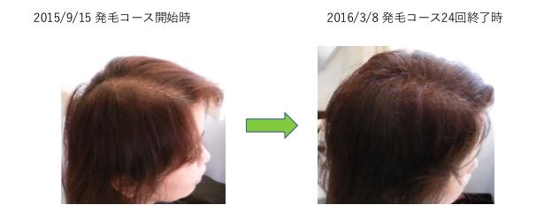 埼玉 越谷 40代 T様 女性 薄毛のお悩み 改善事例1