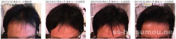埼玉県川口市 AGA・薄毛の40代男性Y様の発毛効果 途中経過