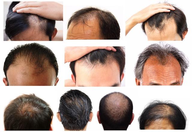 agaによる薄毛の進行例10例