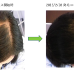 埼玉 春日部 30代 Y様 女性 薄毛のお悩み 改善事例1