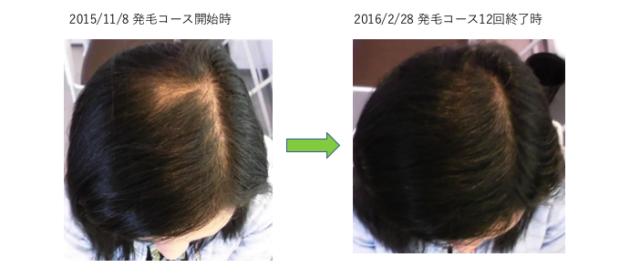 薄毛のお悩み 春日部 30代女性