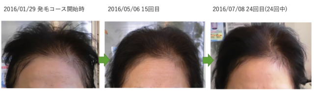 【FAGA/女性の薄毛 改善実績】埼玉県草加市 50代女性 K様