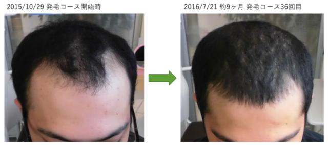 AGAによる薄毛の改善実績 埼玉県八潮市20代男性