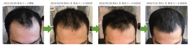 AGAによる薄毛の改善実績 埼玉県八潮市20代男性 途中経過
