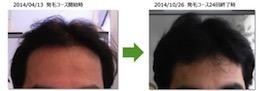 埼玉県草加市40代男性のAGAによる薄毛改善経過画像