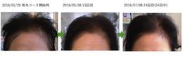 埼玉県草加市50代女性の薄毛改善画像