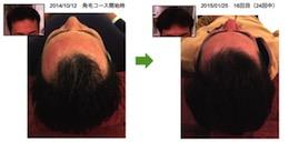 埼玉県草加市30代男性のAGA改善画像