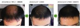 埼玉県越谷市20代男性のAGAによる薄毛の改善経過画像