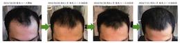 埼玉県八潮市20代男性のAGAによる薄毛の改善経過画像
