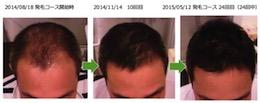埼玉県越谷市40代男性のAGA改善画像