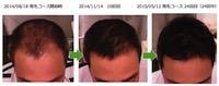 埼玉県越谷市 40代男性のAGA改善画像