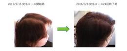 埼玉県越谷市40代女性の薄毛改善画像
