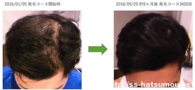 AGAによる薄毛改善 埼玉県三郷市 20代男性