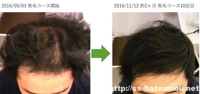 AGA薄毛改善画像 埼玉県春日部市30代男性 2ヶ月目