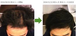 AGA薄毛改善画像 埼玉県春日部市30代男性