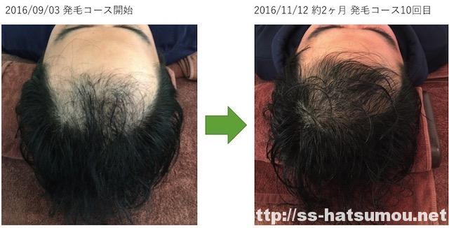 生え際のAGA薄毛改善画像 30代男性 2ヶ月目2