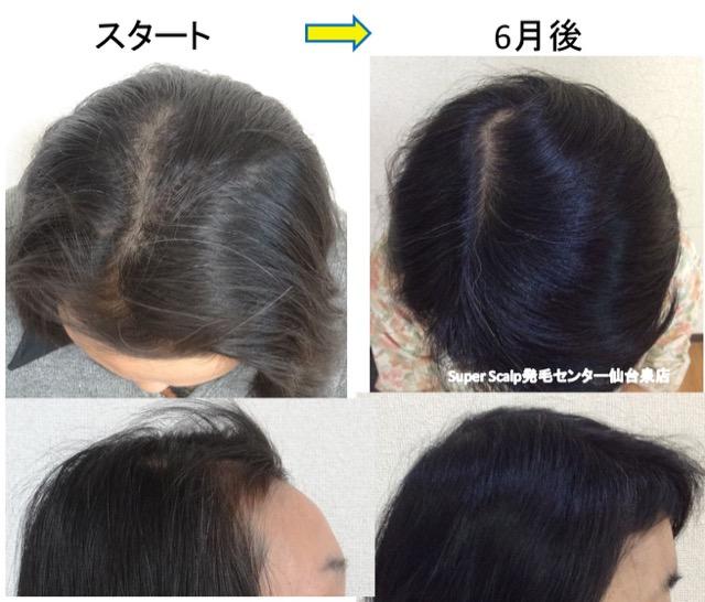 女性の薄毛改善例 2