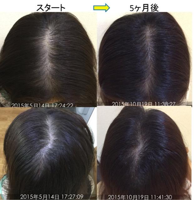 女性の薄毛改善例 1