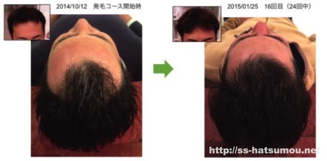 AGA 埼玉県草加市 30代 改善