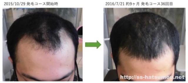 AGA薄毛の改善実績 埼玉県八潮市20代男性