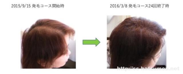 女性の薄毛のお悩み 埼玉 越谷 40代 T様 改善事例1