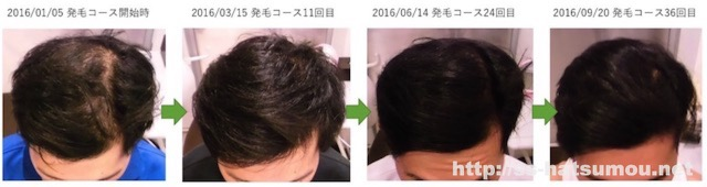 AGA薄毛改善 埼玉県三郷市 20代男性