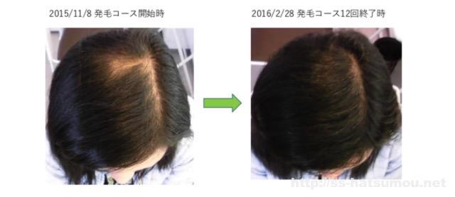 女性の薄毛のお悩み 埼玉 春日部 30代 Y様 改善事例