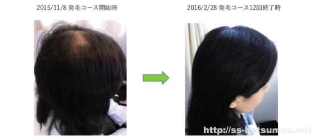 女性の薄毛のお悩み 埼玉 春日部 30代 Y様 改善事例2