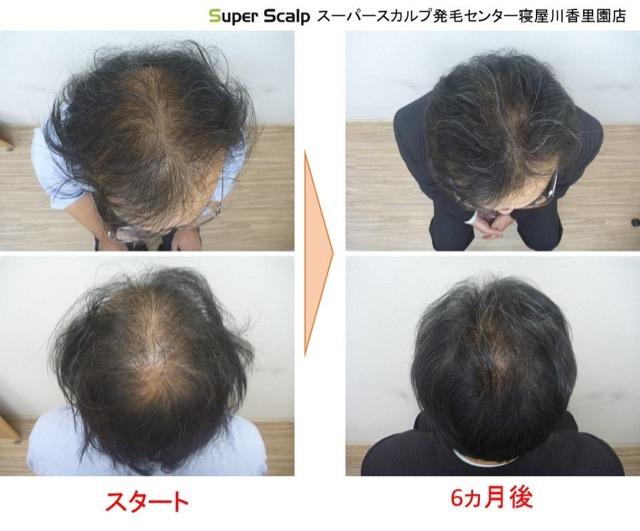 aga薄毛の発毛例