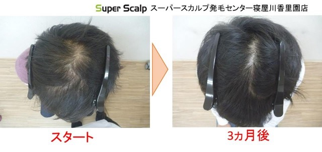 aga薄毛の発毛例2