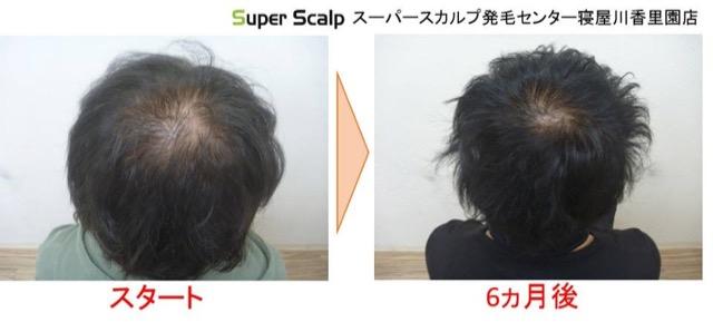 aga薄毛の発毛例3