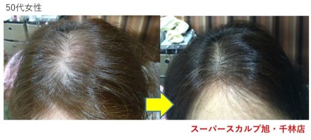 女性の薄毛 改善例 50代