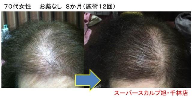 女性の薄毛 改善例 70代