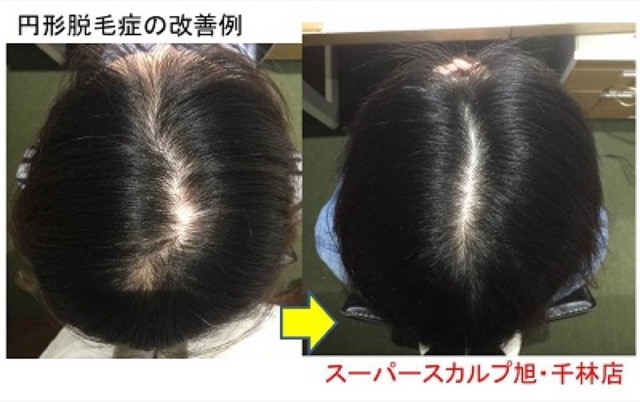 円形脱毛症 改善例