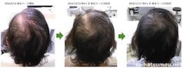女性の薄毛の改善実例 さいたま市岩槻区60代女性