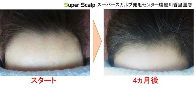 女性の薄毛の発毛例1