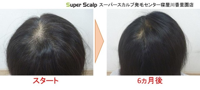女性の薄毛の発毛例2