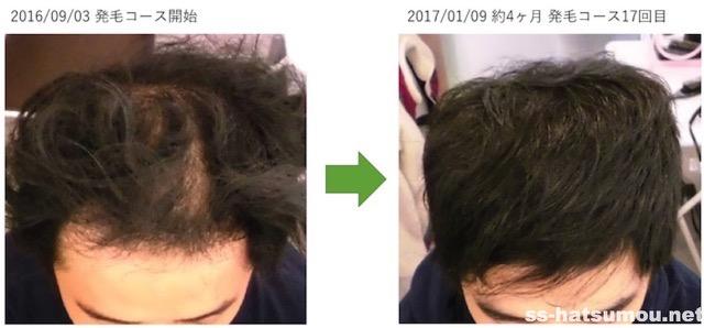 AGA薄毛改善画像 埼玉県春日部市30代男性 4ヶ月目