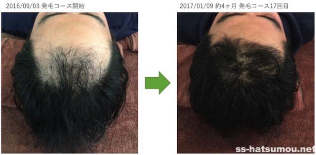 AGA薄毛改善画像 埼玉県春日部市30代男性 4ヶ月目2