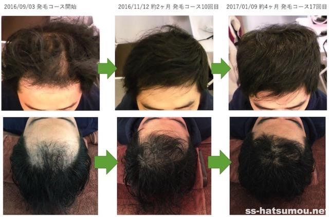 AGA薄毛改善画像 埼玉県春日部市30代男性 4ヶ月目3