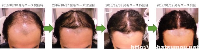 AGA カツラをやめるために発毛した 越谷市30代男性 発毛経過