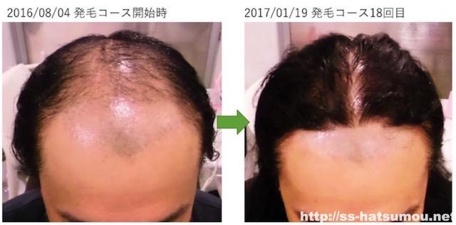 AGA カツラをやめるために発毛した 越谷市30代男性
