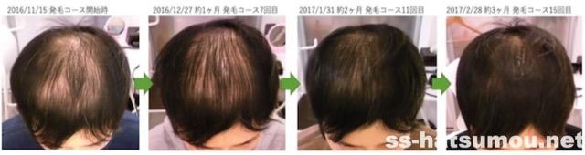 千葉県松戸市 AGA・薄毛30代男性K様の発毛効果 3ヶ月