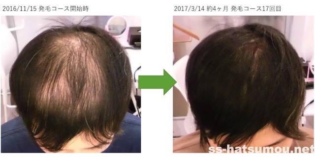 千葉県松戸市 AGA・薄毛30代男性K様の発毛効果 4ヶ月