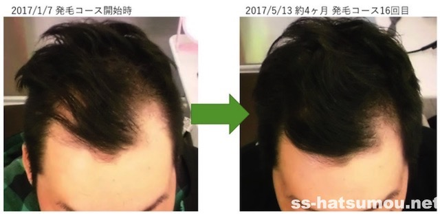 埼玉県幸手市 AGA・薄毛30代男性O様の発毛効果 4ヶ月後