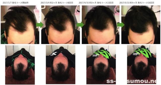 埼玉県幸手市 AGA・薄毛30代男性O様の発毛効果 途中経過