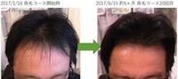 埼玉県川口市 AGA・薄毛の40代男性Y様の5ヶ月での発毛効果