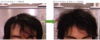 埼玉県久喜市 AGA・薄毛の20代男性K様の6ヶ月での発毛効果 正面
