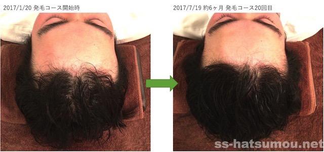 埼玉県久喜市 AGA・薄毛の20代男性K様の6ヶ月での発毛効果 生え際から頭頂部
