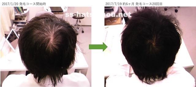 埼玉県久喜市 AGA・薄毛の20代男性K様の6ヶ月での発毛効果  つむじ